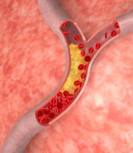 cholesterol myths